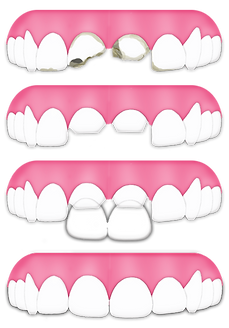 primary-bite-progression-bbtd-to-veneer.