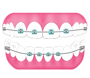 pdc_braces_ph1_4by4.png