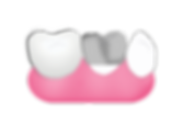 pdc-jaw-portion-crowns2.png