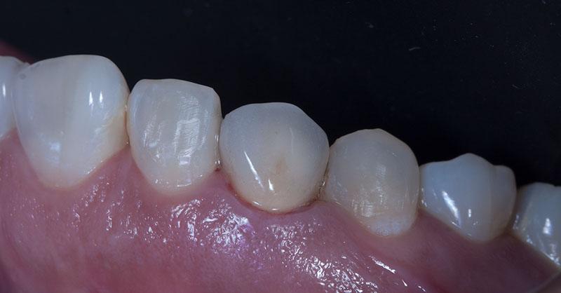 Slider Implantes 3