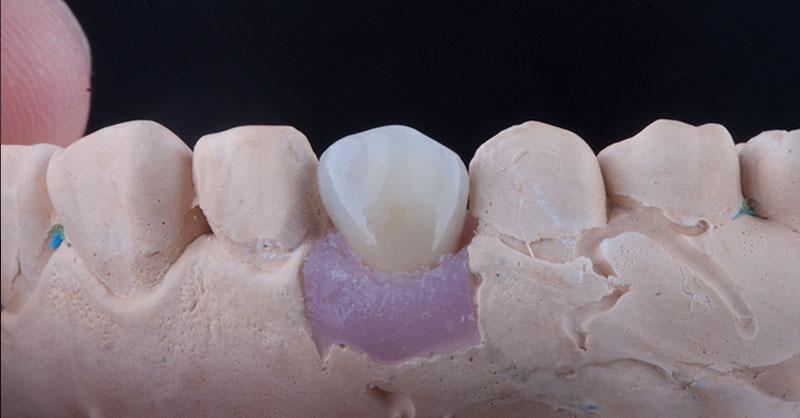 Slider Implantes 1 2