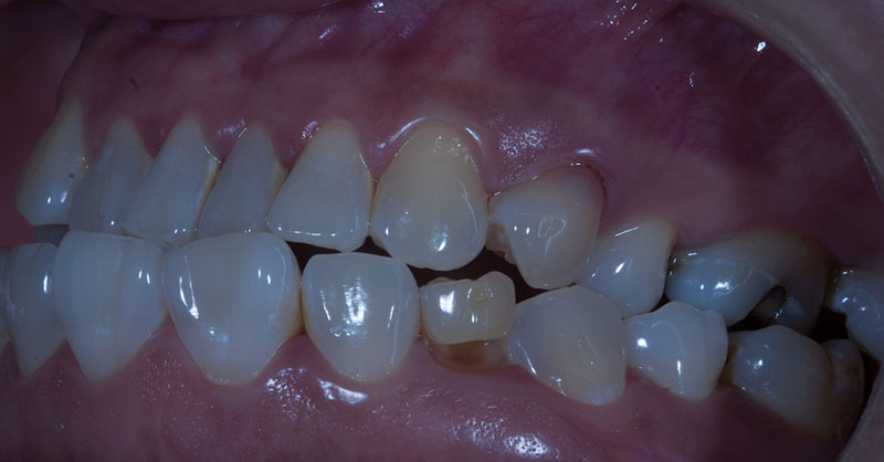 Slider Implantes 5