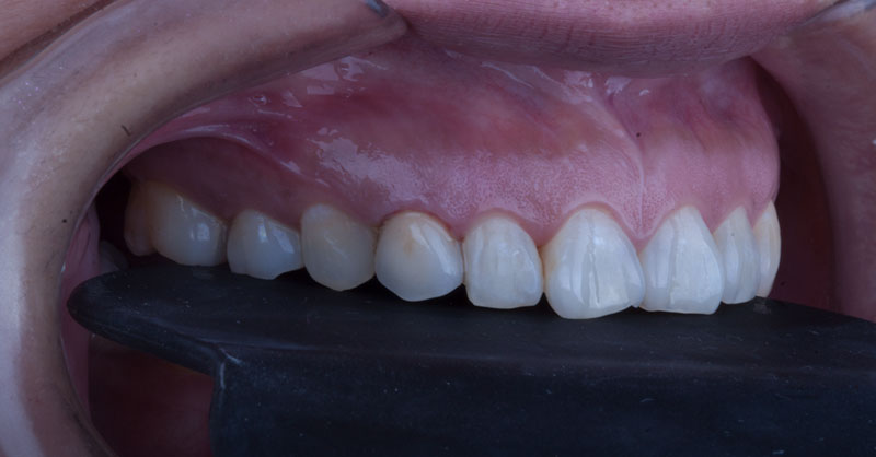 Slider Implantes 4