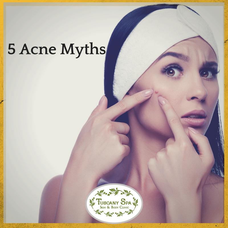 5 acne myths