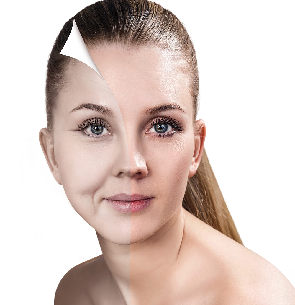 Reveal better skin after a peel. Young woman with before and after mage