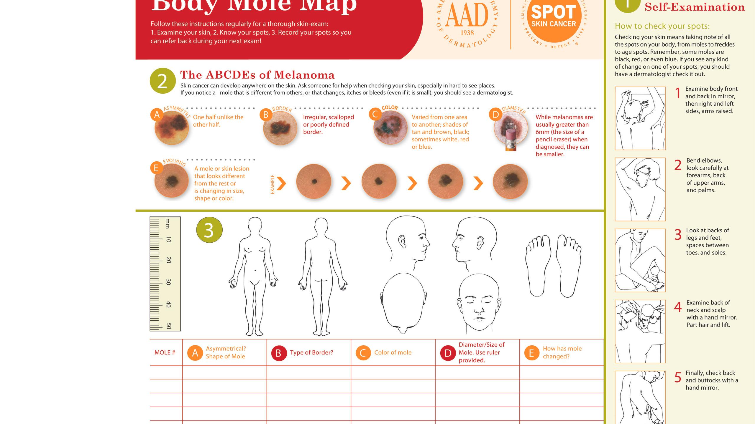 aad-body-mole-map