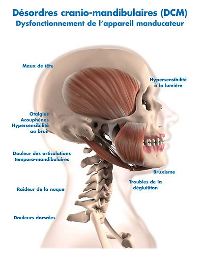 Desordres Cranio-Mandibulaires.jpg