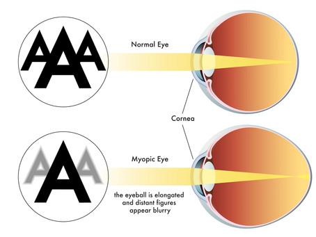 Myopia, Hyperopia & Astigmatism. What's what?