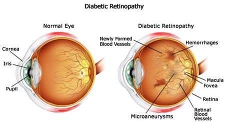 Normal eye vs eye with diabetes