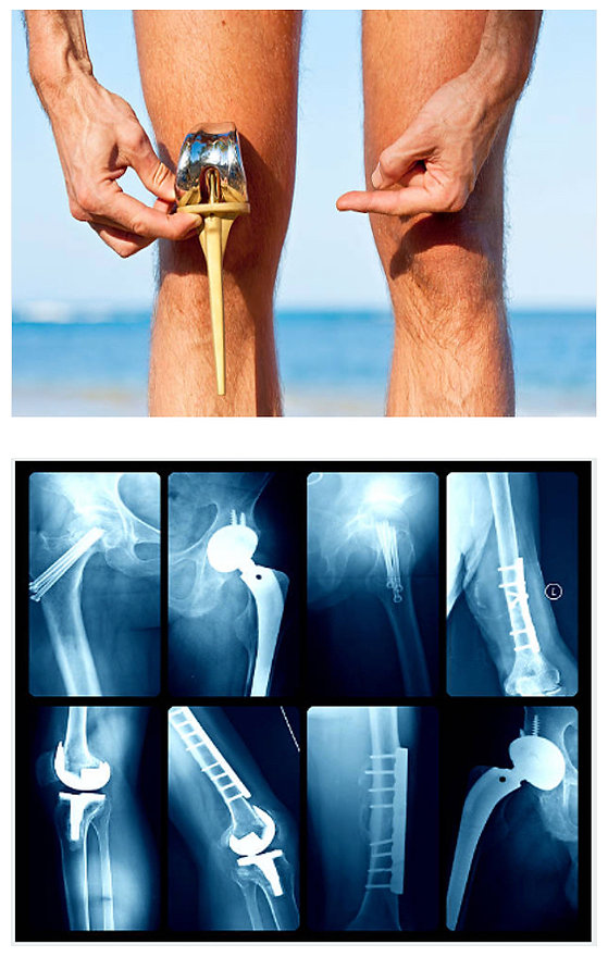 Knee and Hip Images.jpg