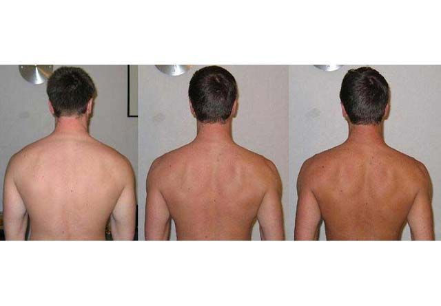 Melanotan before and after