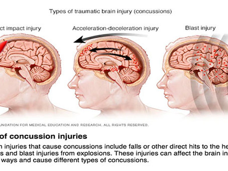 A Mild Traumatic Brain Injury/ Concussion May Not Be So Mild After All