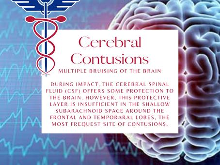 Cerebral Contusions