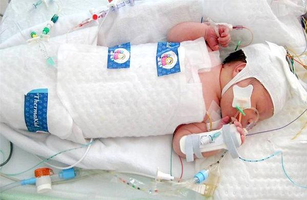 neonatal-cooling_edited.jpg