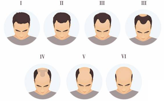stages of hair loss.png