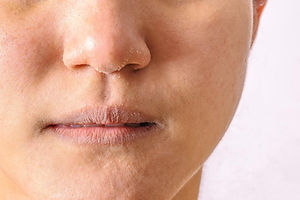eczema-or-dermatitis-on-lips-mouth-and-n