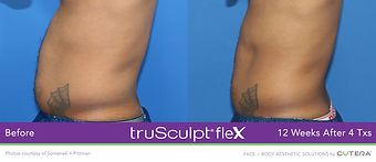 AP002903-truSculpt-flex-Somenek-Pittman-