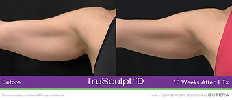 trusculpt-id-atlanta-medical-aesthetics.