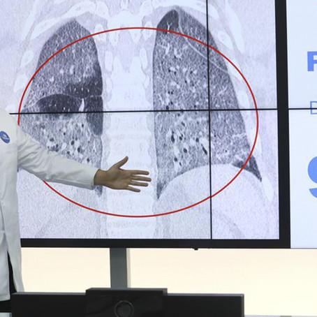 COVID-19 podría dañar la totalidad del pulmón en solo días
