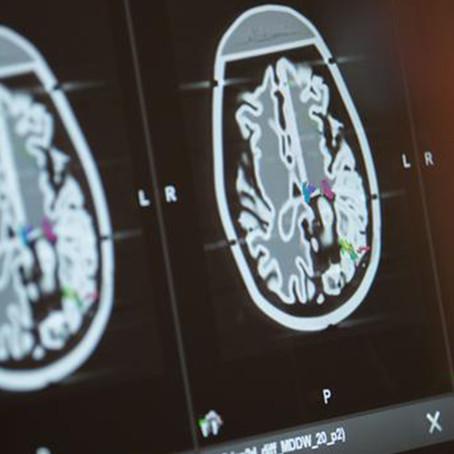 Estudio señala que el volumen de la materia gris en el cerebro es alterado por la COVID-19