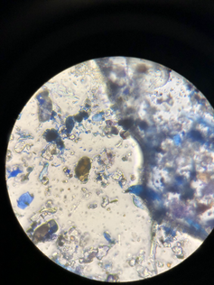 A total-count sample seen at 400x magnification after staining. Mould spores stain blue, but sadly so does wood, paper and cotton fibre :/  The job of the microscopist is to generally ID and count the mould, and keep an eye out for pollen, insect parts and other particles that give us useful information about the location sampled