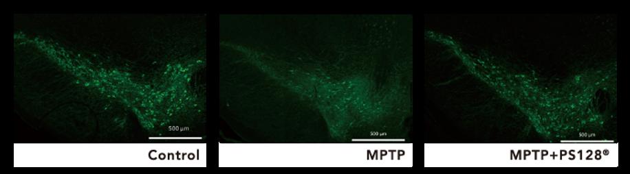 PS128大腦黑質切片.png