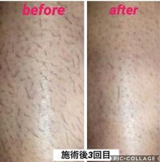 メンズ脱毛:ひざ下脱毛の施術例