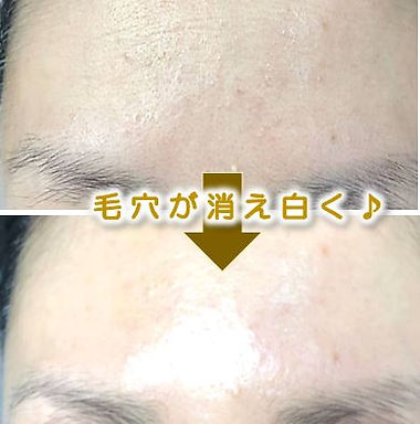 安城市在住の方の顔の脱毛&美肌フェイシャルのbefore→after(毛穴・ニキビ・シミ・シワ改善)