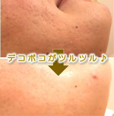 高浜市(高浜)在住の方の顔の脱毛&美肌フェイシャルのbefore→after(毛穴・ニキビ・シミ・シワ改善)