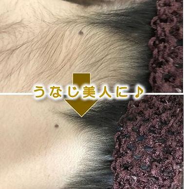 岡崎市在住の方の顔の脱毛&美肌フェイシャルのbefore→after(毛穴・ニキビ・シミ・シワ改善)