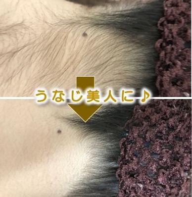 岡崎市(岡崎)在住の方の顔の脱毛&美肌フェイシャルのbefore→after(毛穴・ニキビ・シミ・シワ改善)