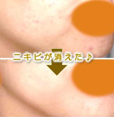 刈谷市(刈谷)在住の方の顔の脱毛&美肌フェイシャルのbefore→after(毛穴・ニキビ・シミ・シワ改善)