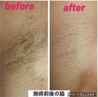 メンズ脱毛:ワキ脱毛の施術例