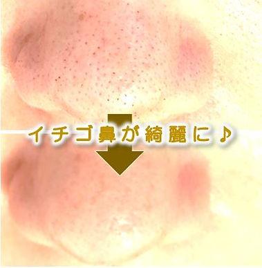 西尾市在住の方の顔の脱毛&美肌フェイシャルのbefore→after(毛穴・ニキビ・シミ・シワ改善)