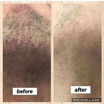 安城・刈谷の脱毛サロンAnge(アンジュ):メンズ脱毛:ヒゲ脱毛の施術例
