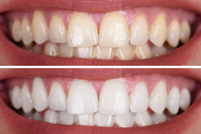 Close-up Of A Smiling Woman's Teeth Befo