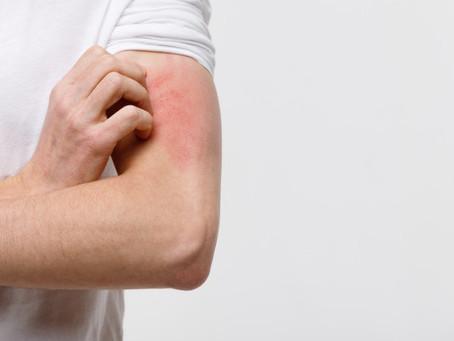 Cerca de 30% dos brasileiros têm algum tipo de alergia