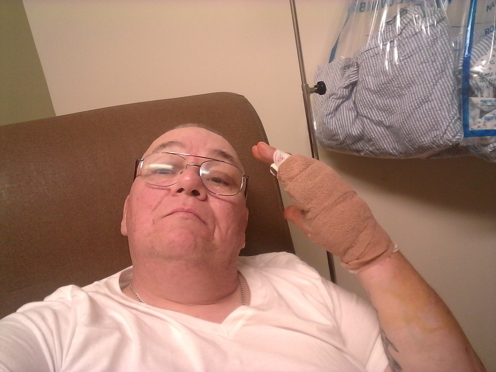 Me After Surgery