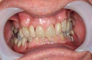 worn_Teeth_3.png