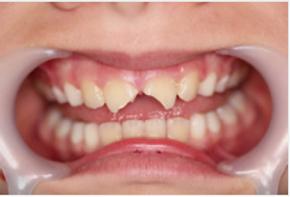Dental_trauma.png