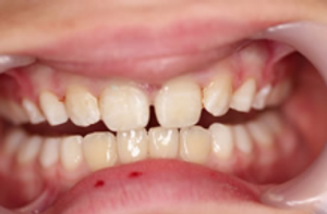 Dental Trauma_After.png
