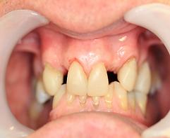 worn_Teeth_2.png