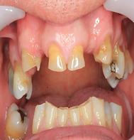 worn_Teeth_1.png