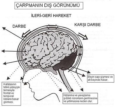 kafa travmasi tedavi neurofeedback
