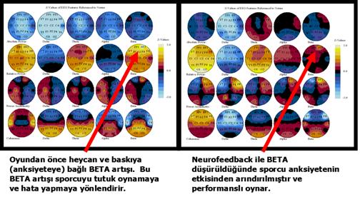 pik performans nedir?, peak performans nedir? neurofeedback tedavi faydalari