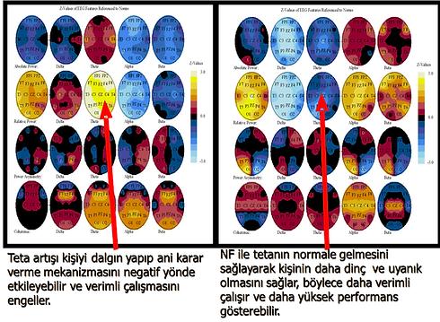 beyin dalgalari beyin haritasi eeg biofeedback