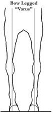 bow-legs (1)_edited