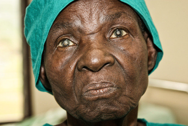 They found she had cataracts in both eyes...