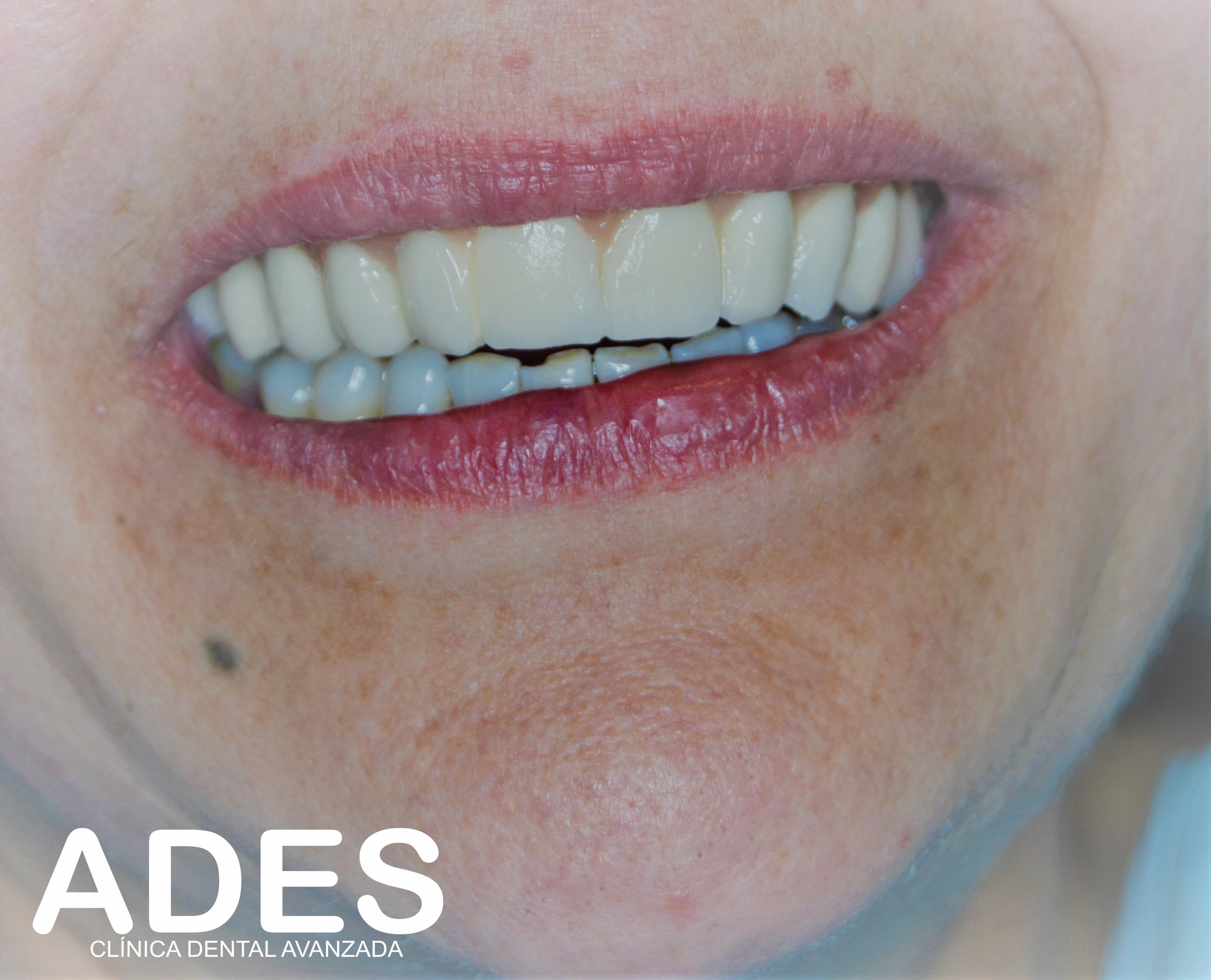 ADES Clínica Dental Avanzada