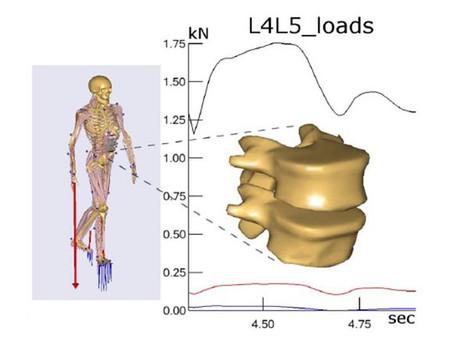 使用 AnyBody 肌肉骨骼模型計算腰椎的真實負荷